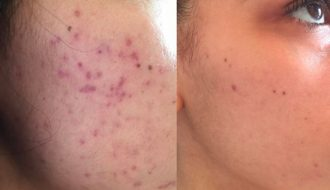 Best Products to Reduce Acne Scars
