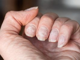 Tips to Prevent Nail Damage
