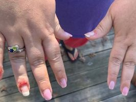 Nail Dip Powder Allergic Reactions